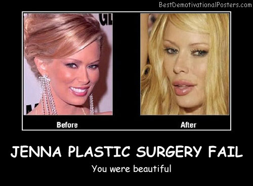 Jenna Plastic Surgery Fail Best Demotivational Posters